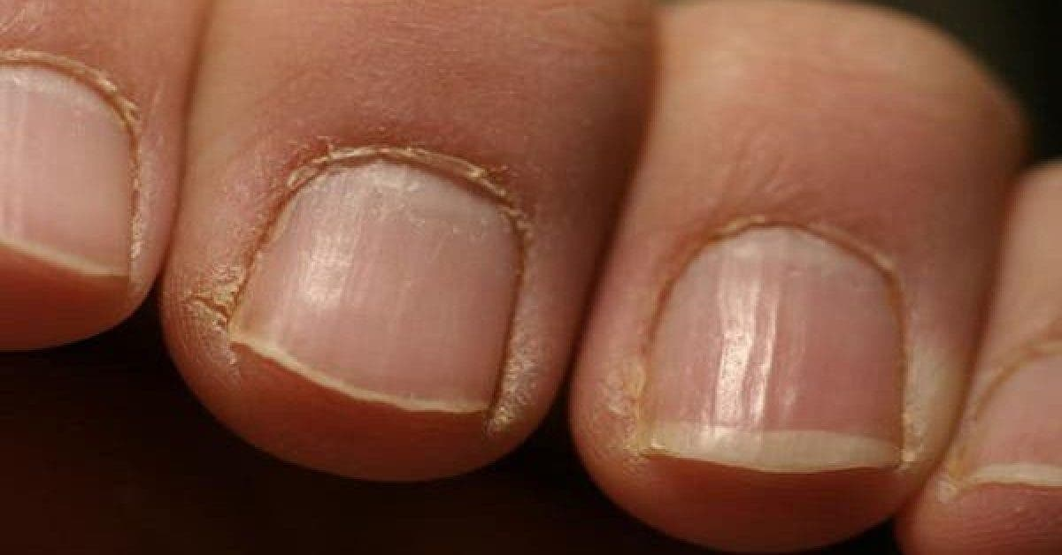 Alerte rouge : si vous voyez cela sur vos ongles consultez immédiatement un médecin !