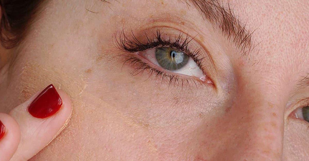 7 astuces naturels pour resserrer les pores dilatés et avoir une peau radieuse