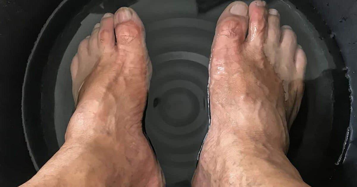 Comment faire un bain de pieds au bicarbonate de soude pour soigner les callosités
