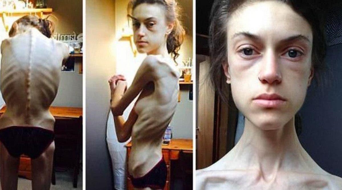 souffrant-danorexie-cette-jeune-fille-revele-les-images-de-sa-guerison-et-prouve-que-tout-le-monde-peut-y-arriver