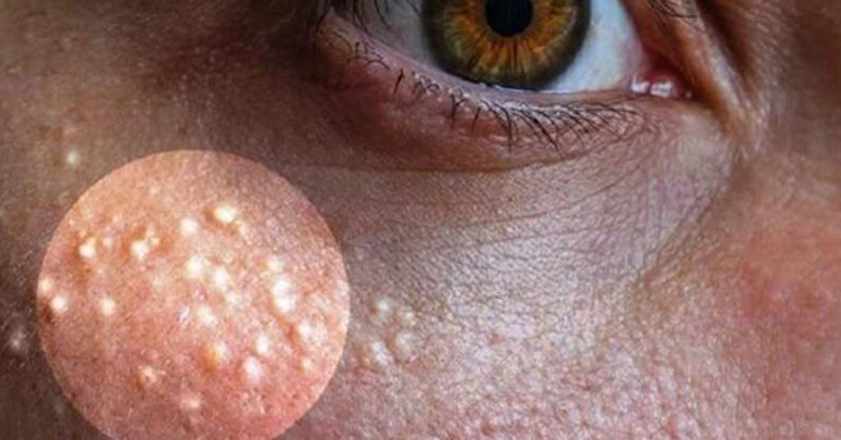 Supprimez le milium (acné miliaire) de votre visage grâce à ces remèdes naturels