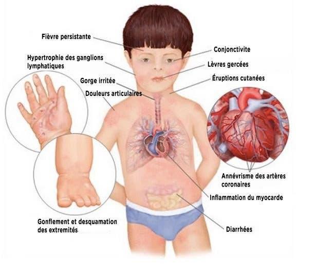 symptome maladie de kawasaki