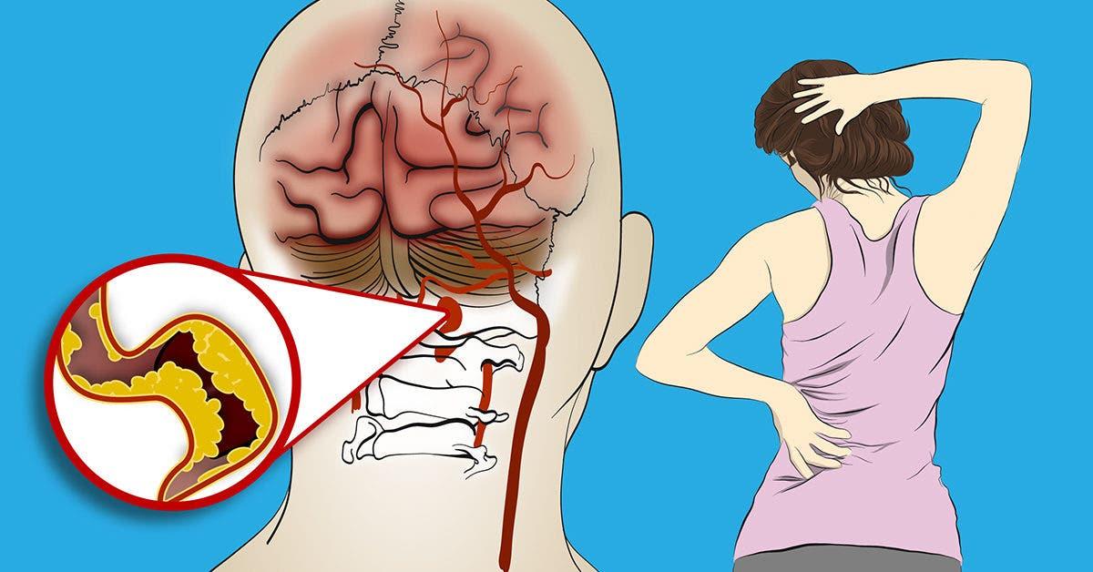 AVC : prévention et symptômes à reconnaître
