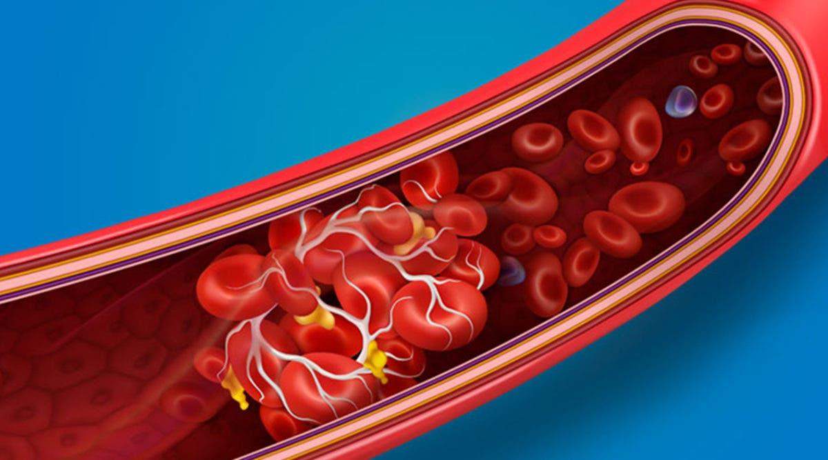 symptomes-diagnostic-traitement--ce-quil-faut-savoir-sur-la-thrombose