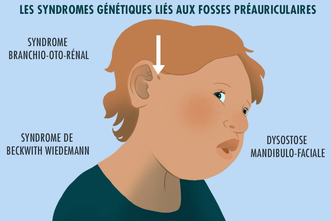 syndromes genetiques