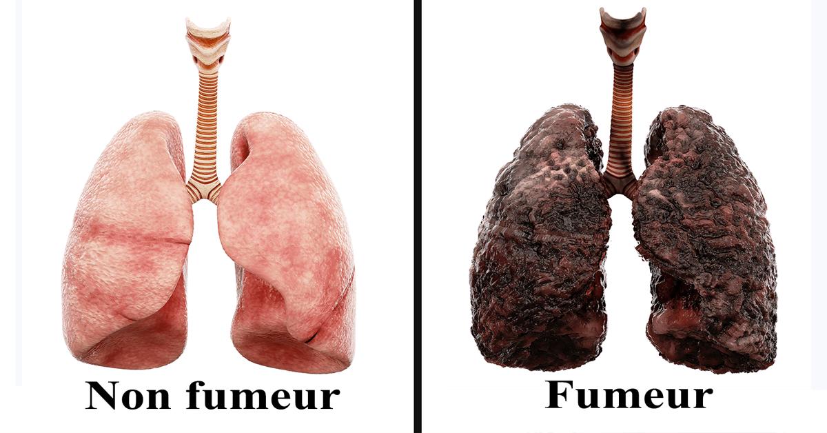 tabagisme fait chaque jour a vos poumons 1