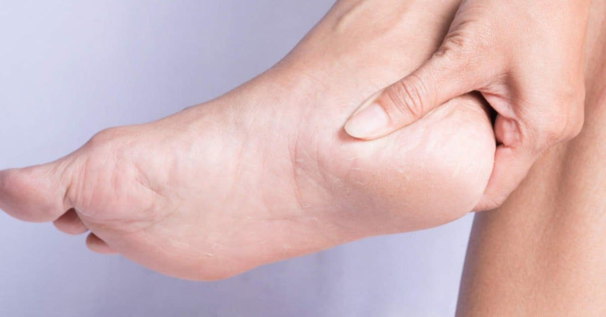 10 remèdes maison réparer les talons crevassés et avoir de beaux pieds