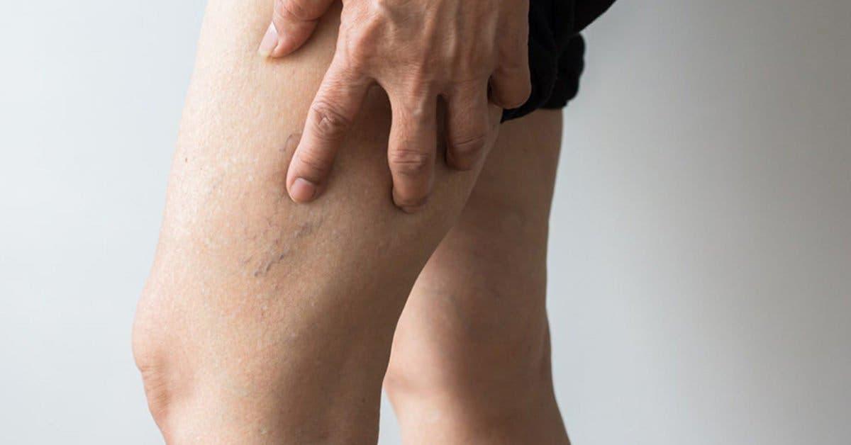Thrombose veineuse profonde : Voici les symptômes auxquels vous devez prêter attention