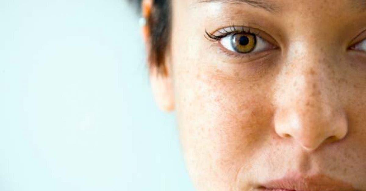 traitement naturel pour eliminer les imperfections et taches de rousseur11