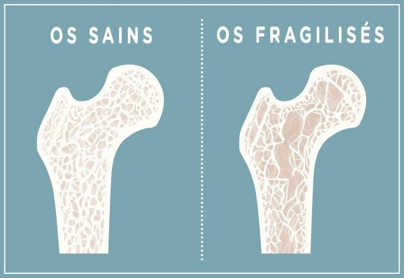 troubles osseux