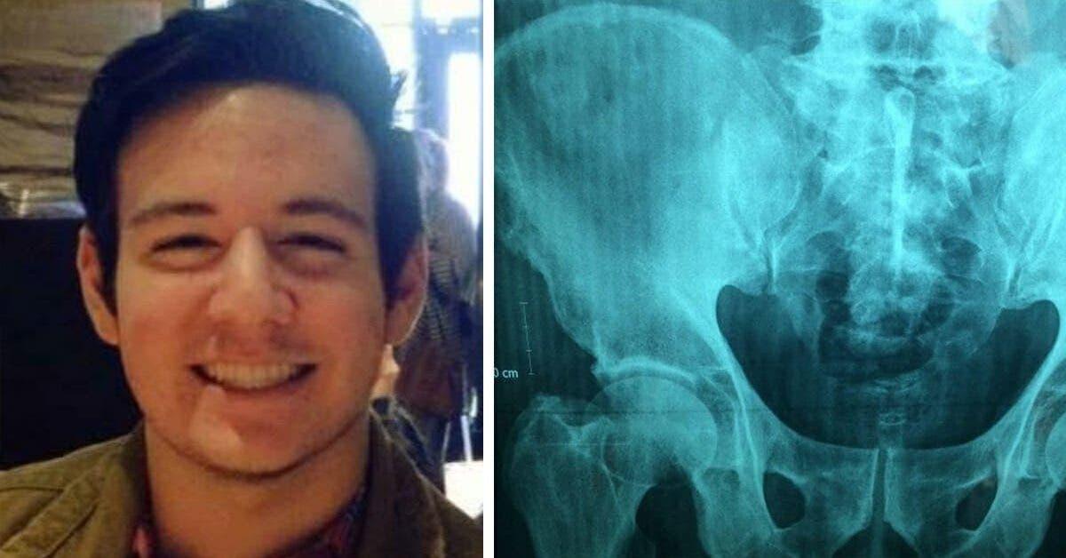 un adolescent se plaint de maux destomac a lecole il meurt a peine deux heures plus tard 1 1