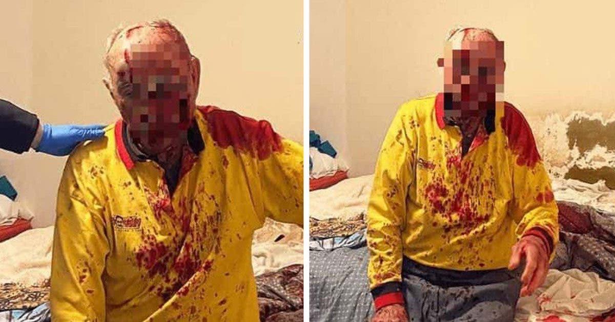 un-homme-de-84-ans-est-place-dans-le-coma-artificiel-a-cause-dune-attaque-sauvage-dont-il-a-ete-victime