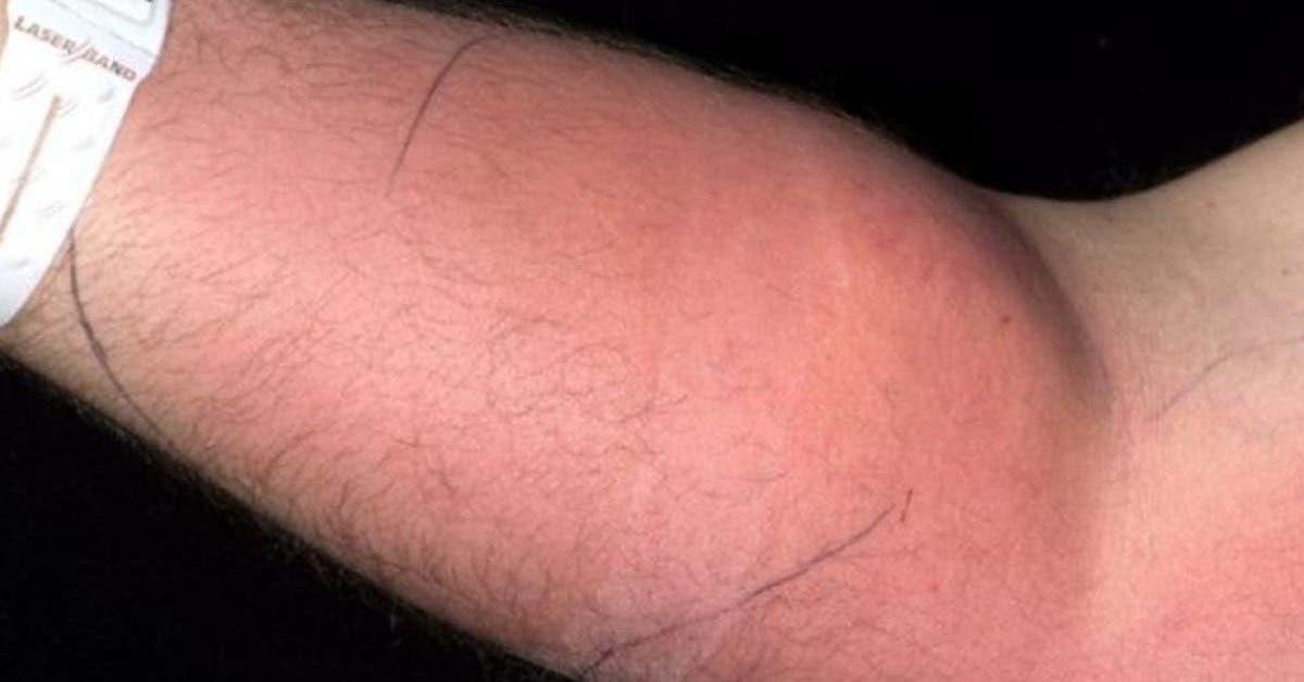 un homme est hospitalise apres avoir injecte son propre sperme dans son bras 1