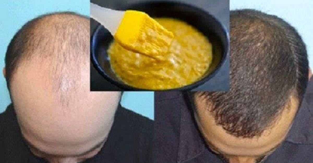 Un masque fait maison très efficace pour favoriser la pousse des cheveux