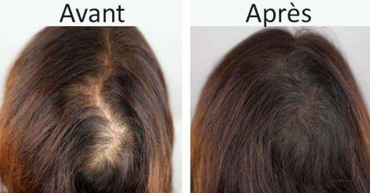 un masque naturel pour ne plus perdre vos cheveux 1