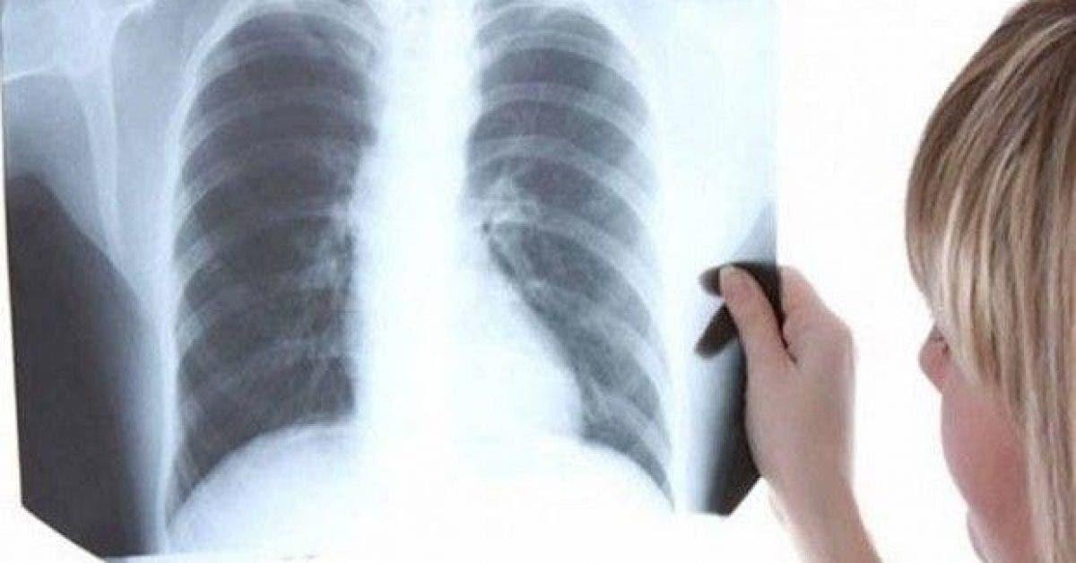 un medecin affirme que cette vitamine traite la pneumonie en 3 heures 1