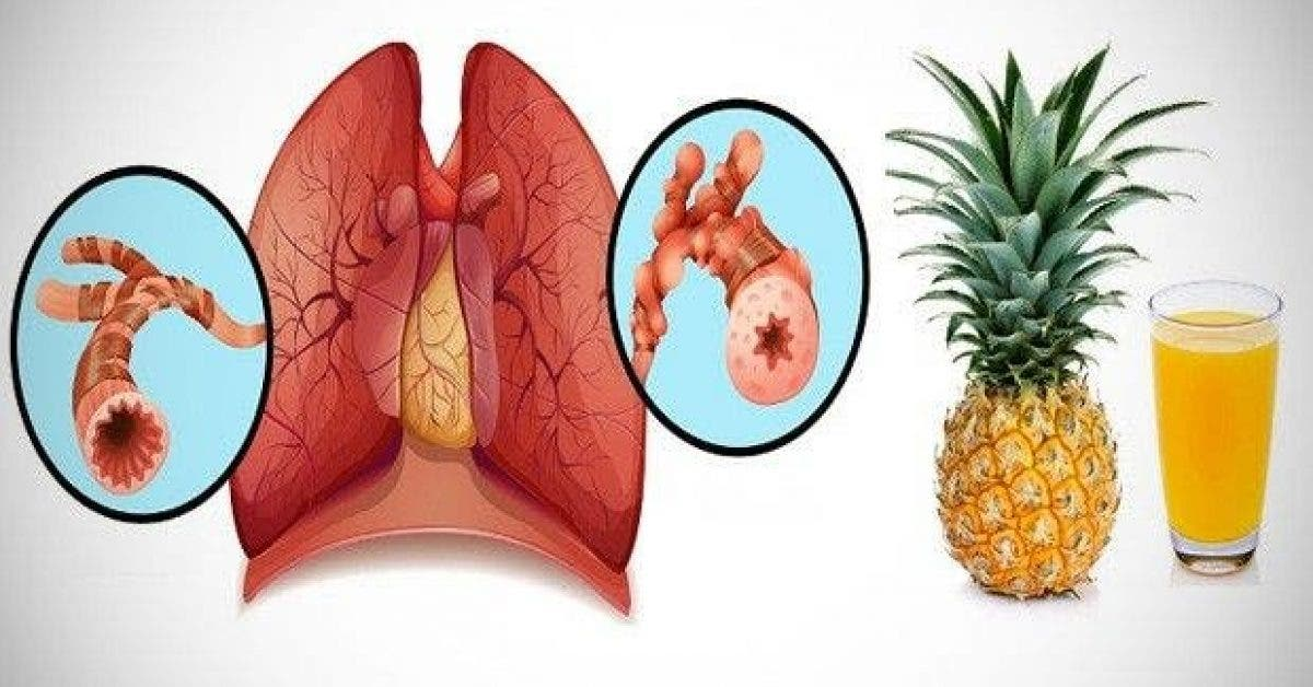 un sirop naturel contre le rhume et la toux 1