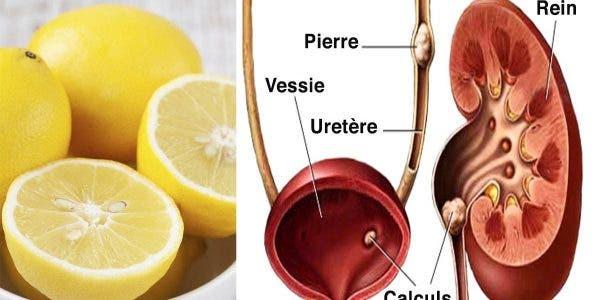 une-ancienne-recette-au-citron-pour-eliminer-les-calculs-renaux