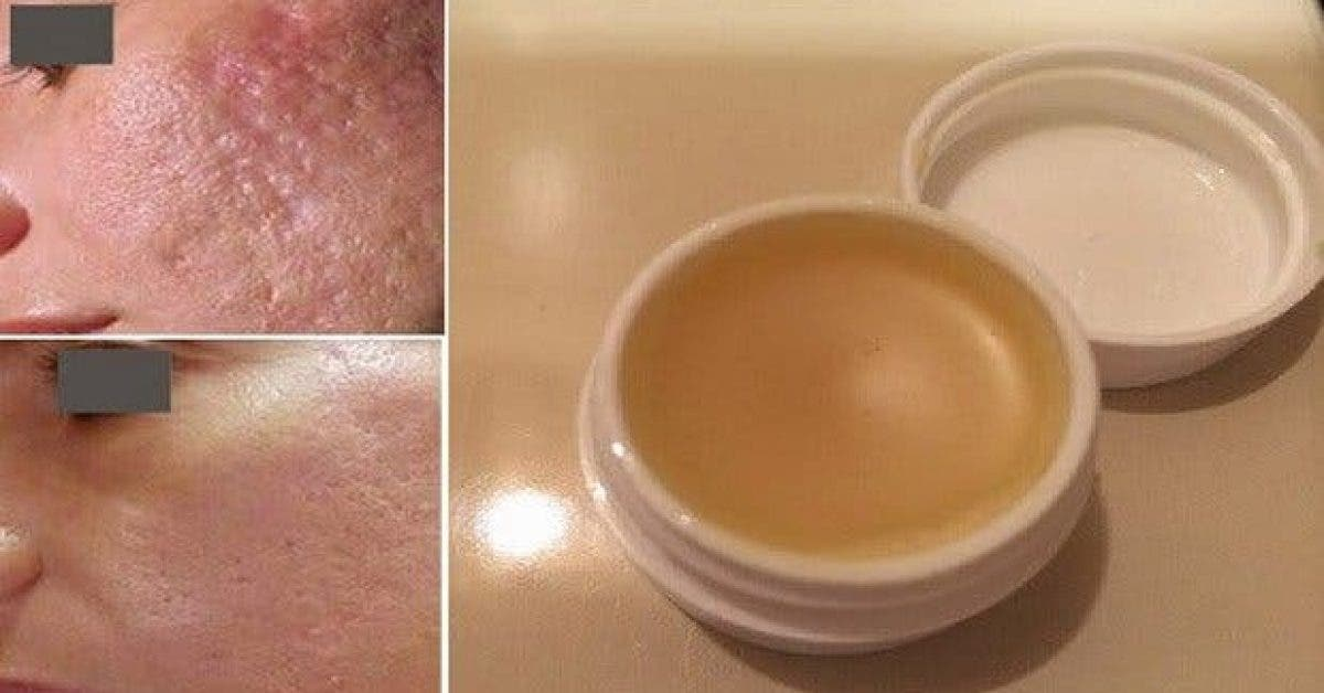une creme maison incroyable pour eliminer les cicatrices en moins de 2 semaines 1 1