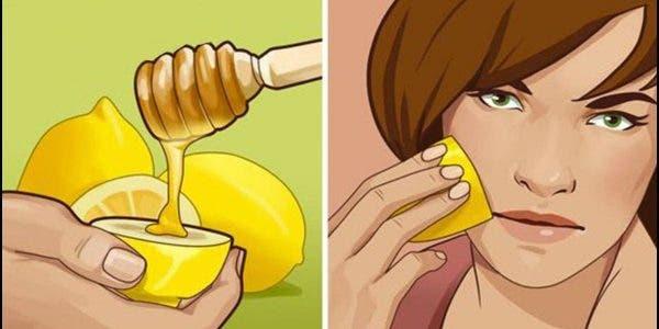 Une dermatologue recommande ce remède extraordinaire au citron pour éliminer l'acné du visage