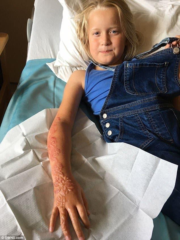 Une enfant de 7 ans se retrouve avec des ampoules