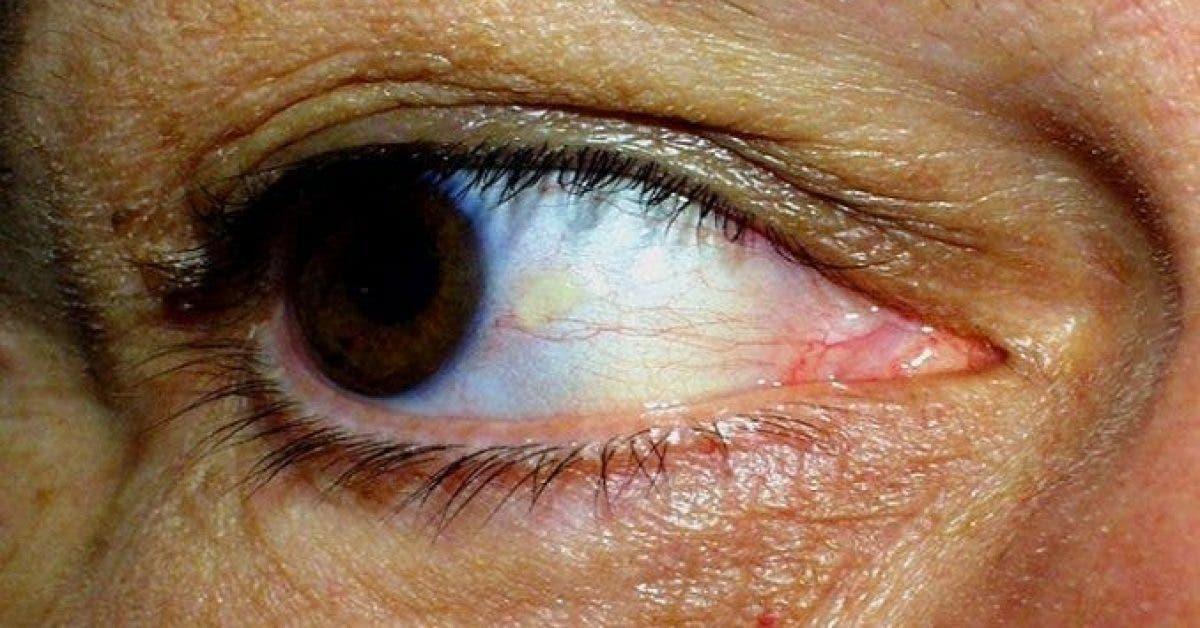 une etude confirme que vos yeux peuvent indiquer un AVC imminent 1