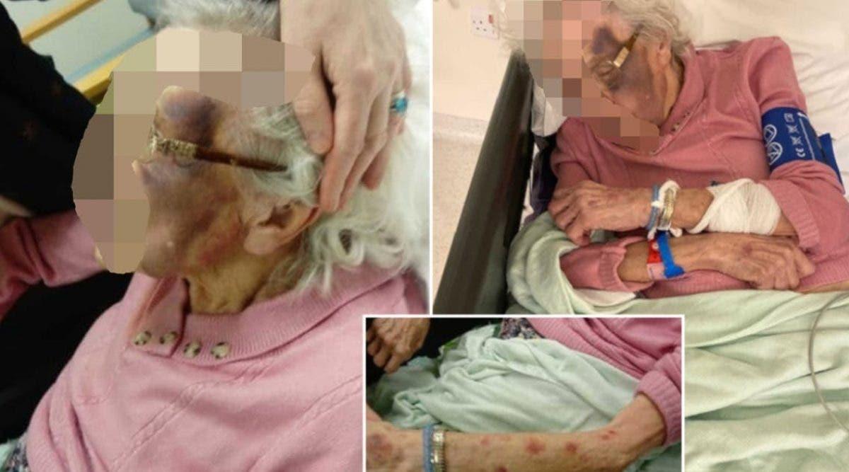 une-famille-partage-les-photos-dechirantes-dune-mamie-de-90-ans-victime-dune-agression-sexuelle-dans-une-maison-de-retraite
