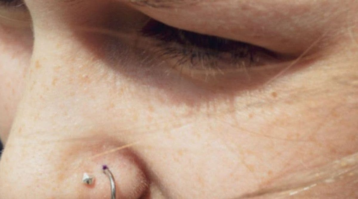 une-femme-de-20-ans-devient-handicape-a-cause-dun-piercing-au-nez