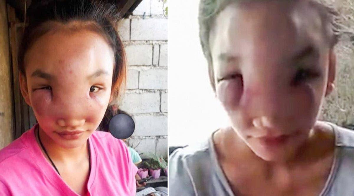 une-fille-de-17-ans-est-devenue-aveugle-a-cause-dune-maladie-mysterieuse-apres-avoir-presse-un-bouton-sur-son-nez