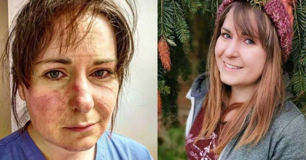 une infirmière alerte les gens et publie des photos pour montrer la réalité du coronavirus