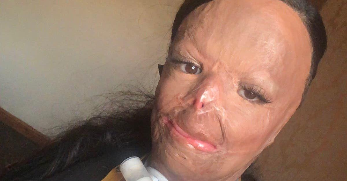 une-jeune-ado-de-16-ans-est-victime-de-brulures-au-troisieme-degre-a-cause-de-son-shampoing