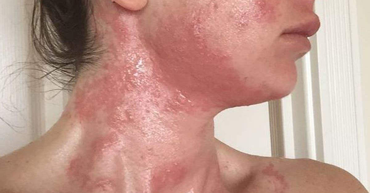 une-jeune-femme-declare-avoir-eu-une-allergie-au-covid-19-mais-cela-peut-il-vraiment-arriver