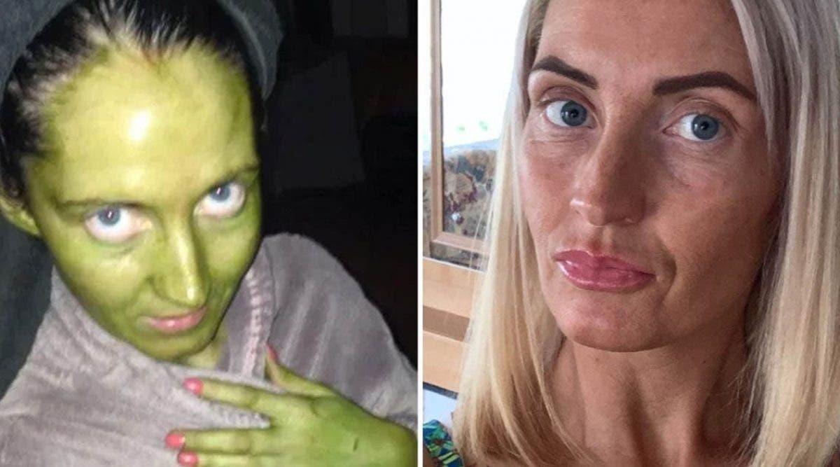 une-maman-devient-toute-verte-apres-avoir-utiliser-une-creme-perimee