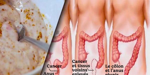 une-methode-naturelle-pour-lutter-contre-la-constipation-et-nettoyer-le-colon
