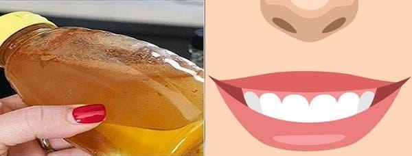 Les dentistes cachent ceci