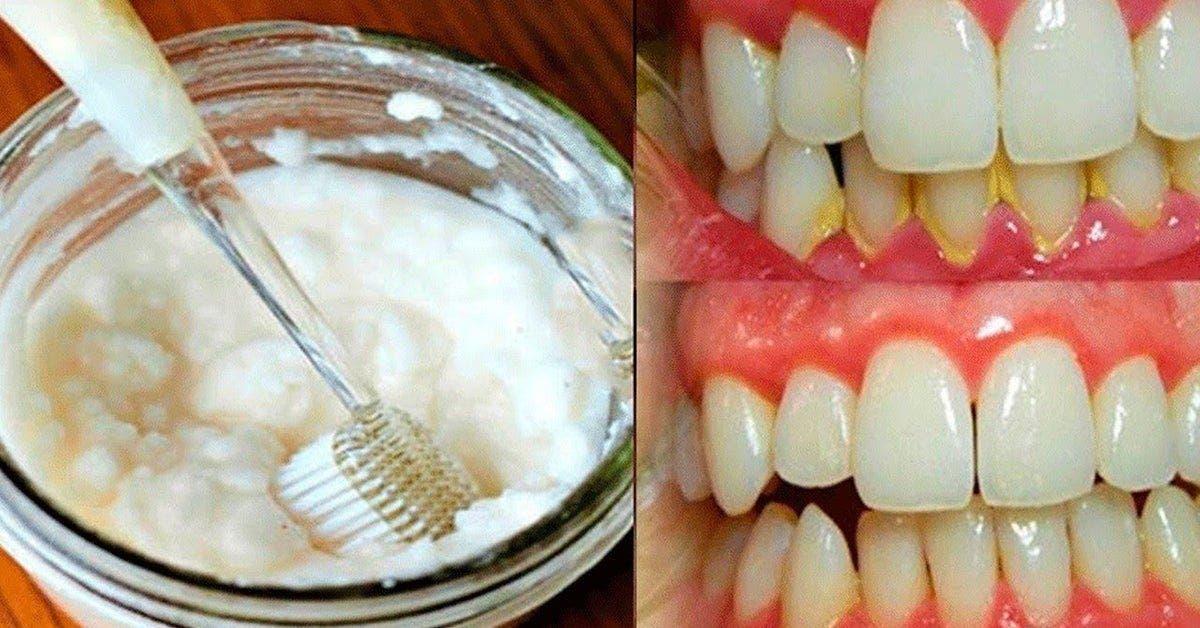 une methode simple pour supprimer la mauvaise haleine et se debarrasser des mauvaises bacteries de la bouche 1 1