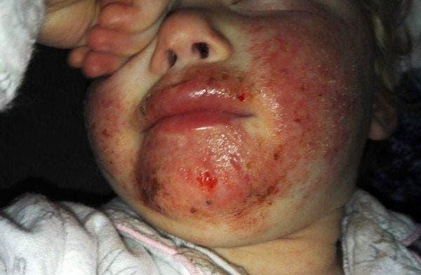 Une petite fille court voir sa mère avec du sang sur le visage