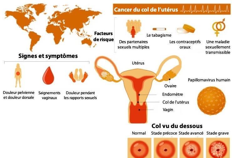 la plupart des femmes ignorent ces 3 premiers signes du cancer du col de l ut rus. Black Bedroom Furniture Sets. Home Design Ideas