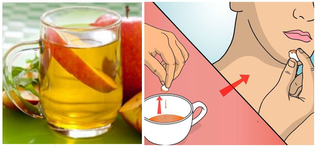 utilisations conseillés par les médecins du vinaigre de cidre