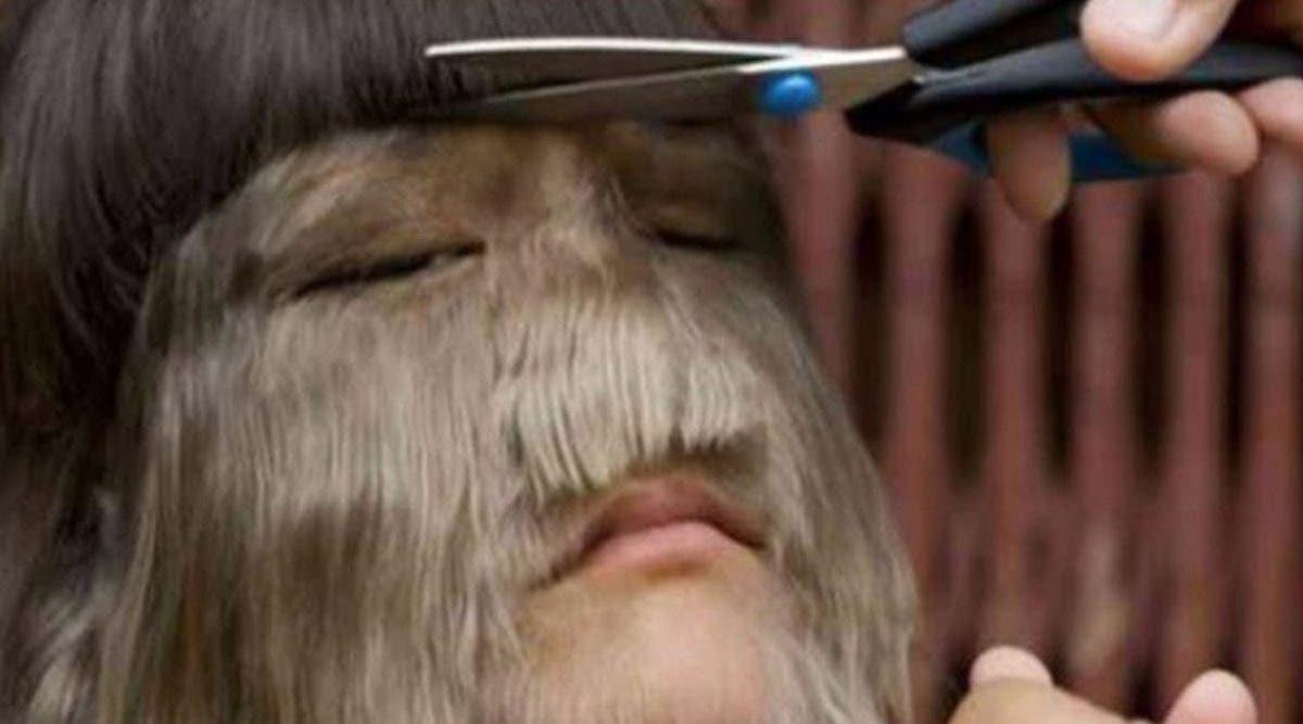Victime de moquerie la femme la plus poilue du monde