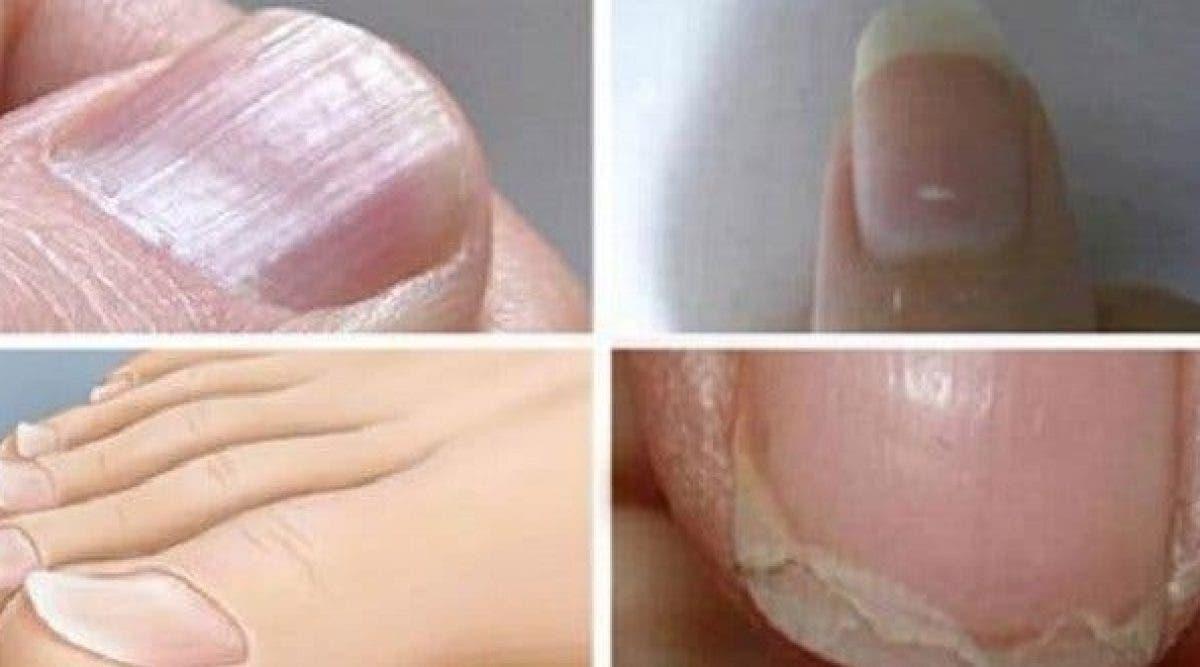 Voici Ce Que Représentent Les Lignes Blanches Sur Vos Ongles