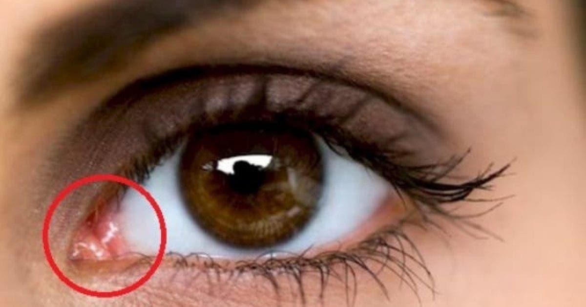 voici ce que signifie ce petit angle rose au coin de votre oeil 1