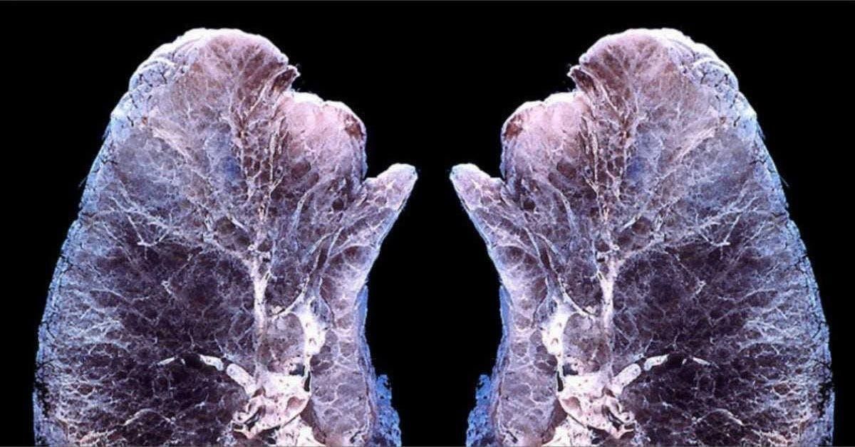 voici ce qui arrive a vos poumons quand vous diffusez des huiles essentielles 1 1