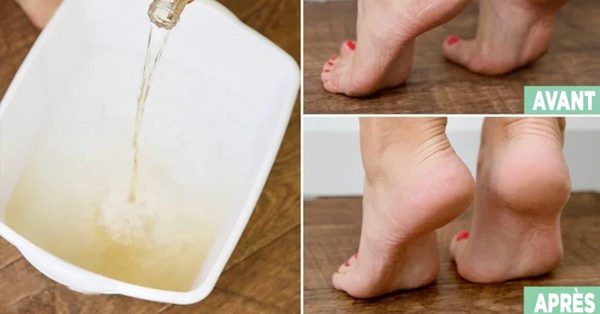 voici-comment-adoucir-les-pieds-secs-avec-des-astuces-naturelles