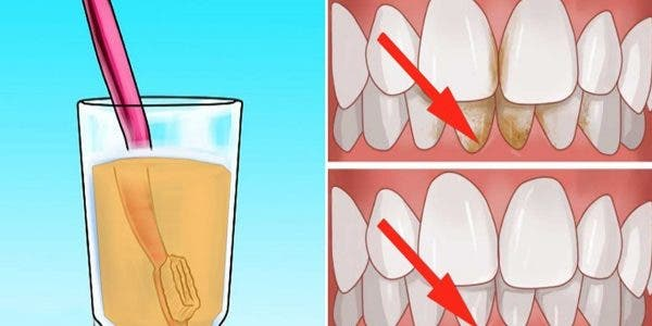 voici-comment-blanchir-les-dents-naturellement-avec-du-vinaigre-de-pomme