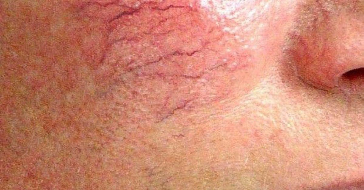 voici comment combattre les varicosites sur le visage 2 1