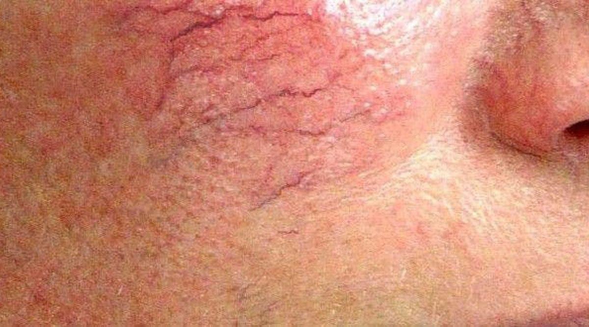 Voici comment prévenir l'apparition des varicosités sur le