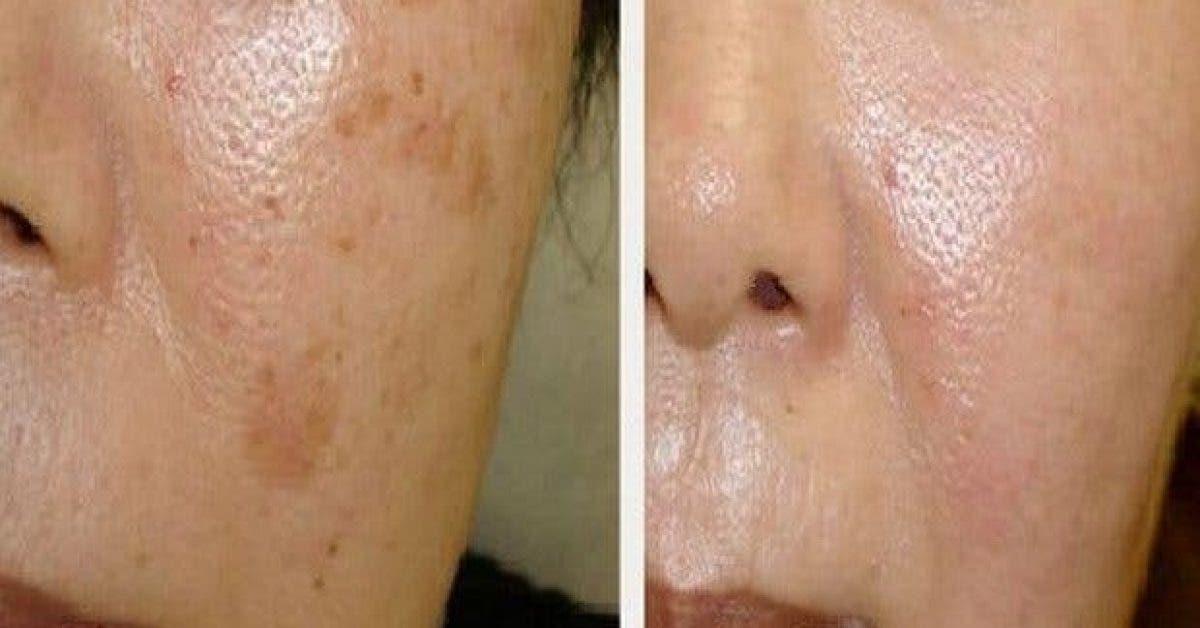 voici comment eliminer les taches brunes de votre visage naturellement 1