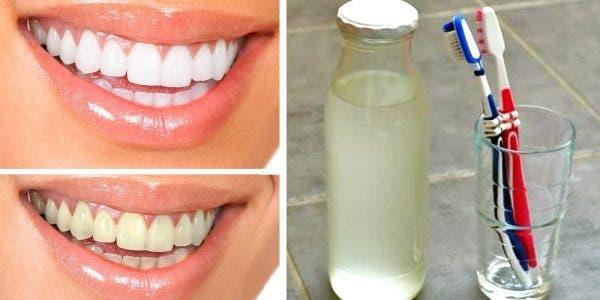 voici-comment-fabriquer-un-bain-de-bouche-naturel-sans-alcool