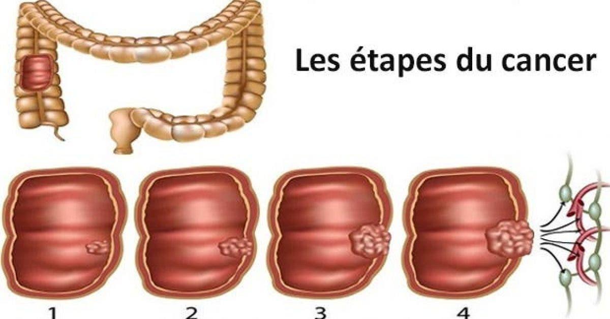 voici comment ne pas avoir le cancer du colon 1